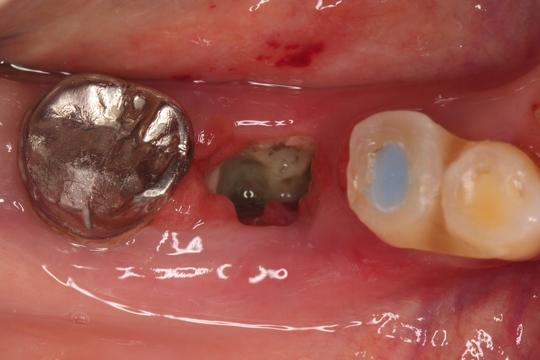 抜歯 プラリア